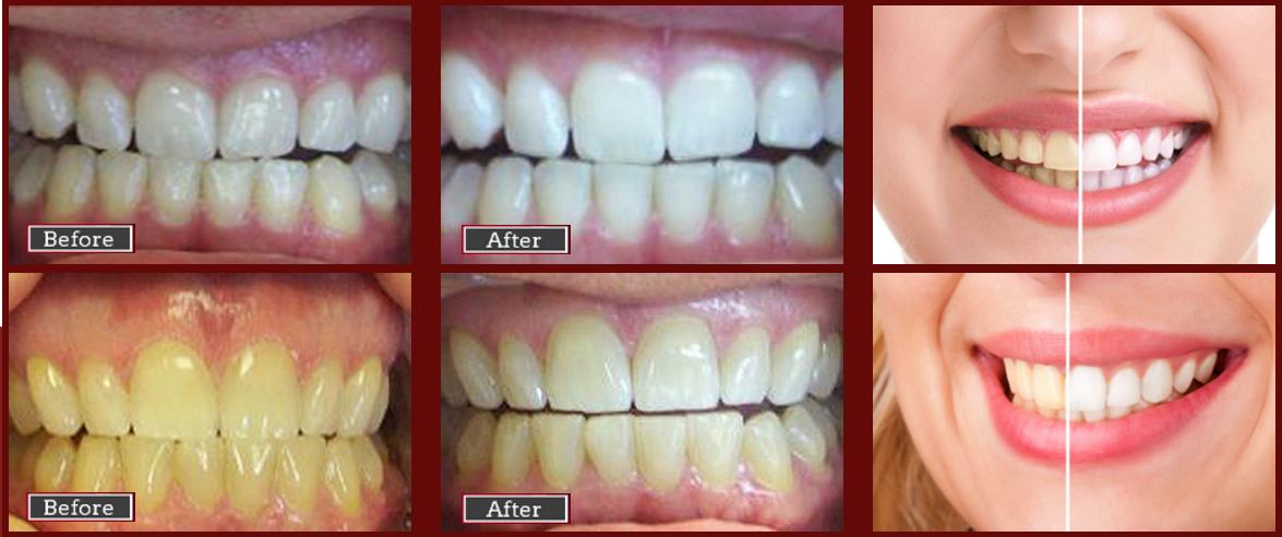 teeth whitening dentist noblesville